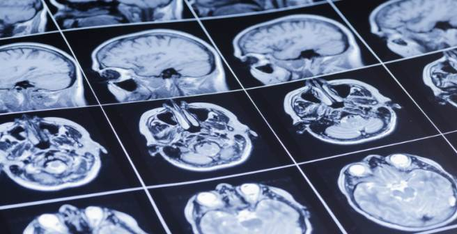 2014 Nobel Prize for Physiology/Medicine awarded to the discovery of 'place cells' in brain